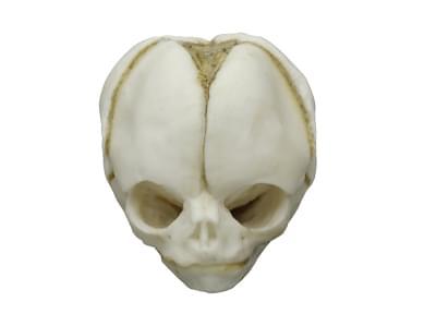 4765 - Lebka 20 týždňového plodu