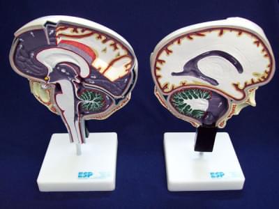 Cirkulácia mozgovomiechového moku