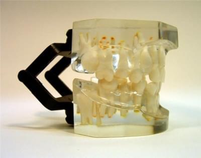 MDO-16 - Ortodoncia - neúplný zhryz