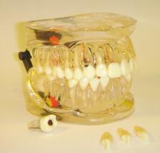 MDO-42 - Model s vyberateľnými zubami
