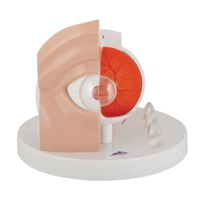 F17 - Patologický model oka, 5x zväčšený