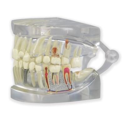 1019540 - Priehľadná čeľusť človeka s modelom zubov