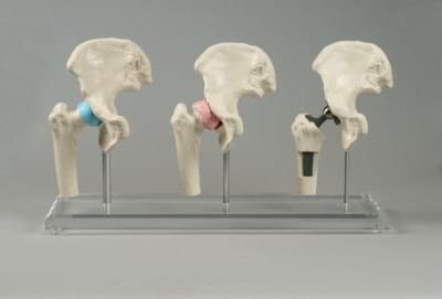 1115 - Model bedrového implantátu