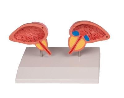 1261 - Model prostaty