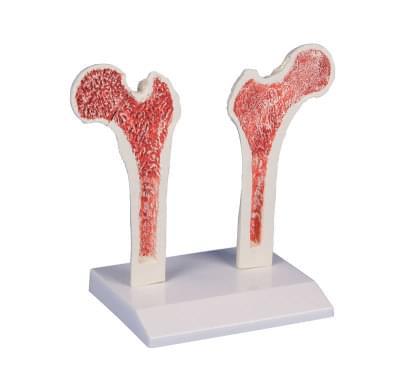 4030 - Osteoporóza stehennej kosti