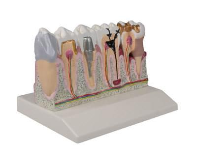 D250 - Ochorenie zubov