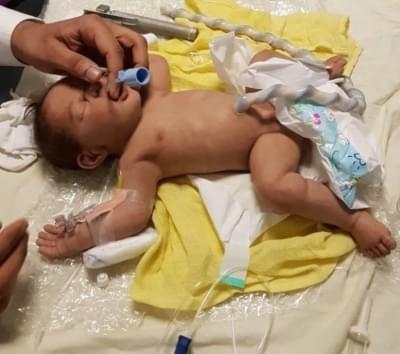 Plne donosený novorodenec s dyspláziou bederného kĺbu - Realistická figurína
