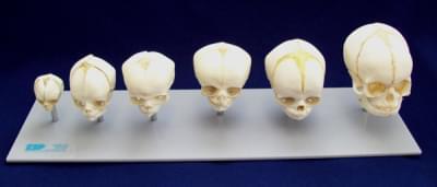 Vývoj lebky plodu - šesť štádií