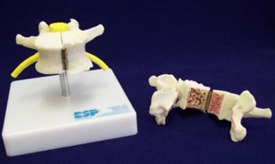 Stavec znázorňujúci artritídu a osteoporózu
