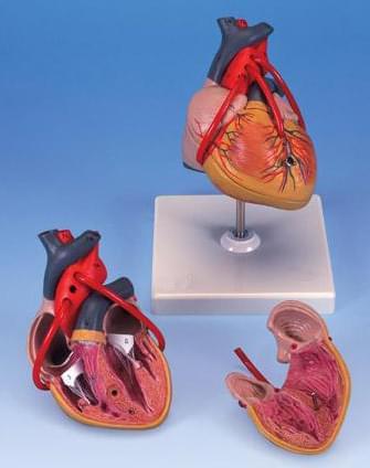 Srdce s bypassom, dve časti
