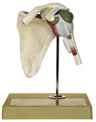 NS 17 - Ramenný kĺb