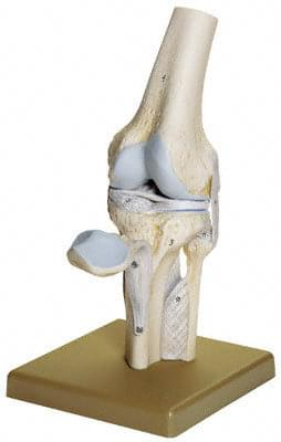 NS 19 - Kolenný kĺb