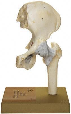 NS 20 - Bedrový kĺb