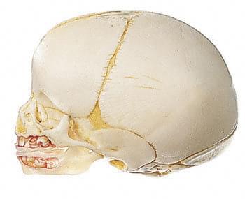 QS 3 - Umelá lebka plodu