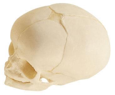 QS 3/3 - Umelá lebka plodu