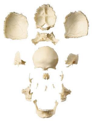QS 9/1 - Umelá lebka dospelého človeka