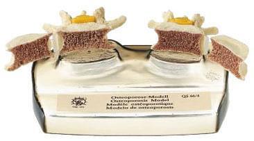 QS 66/4 - Model osteoporózy