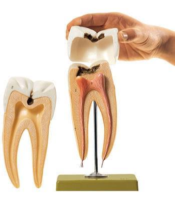 ES 8 - Stolička so zubným kazom