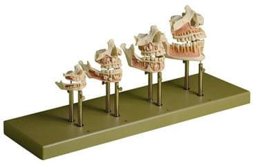 ES 14/1 - Vývoj zubov - set (úplné modely)