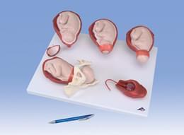 Model fází porodu