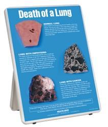 Model odumření plíce, na stojanu