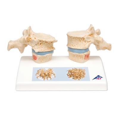 A95 - Model osteoporózy