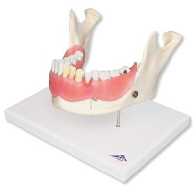 D26 - Zubné ochorenie, 2 krát zväčšené, 21 častí