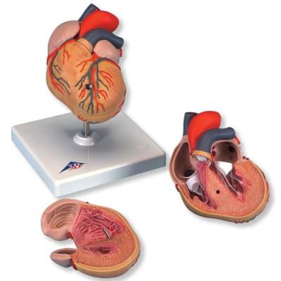 G04 - Klasický model srdca s hypertrofiou ľavej komory, 2 časti