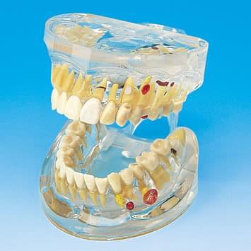 Transparentný model ochorenia zubov