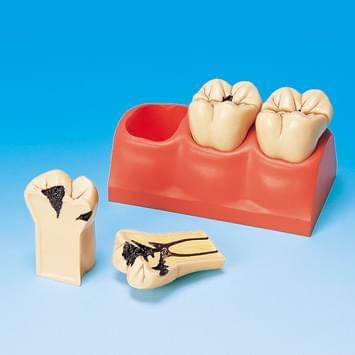 4 × zväčšený model zubných kazov