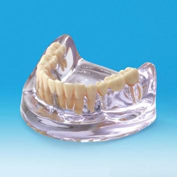 Model implantátu PE-IMP003