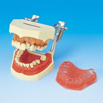 Model ochorenia parodontu PE-PER001