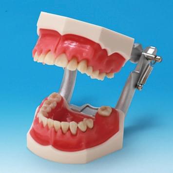 Model ochorenia parodontu PE-PER003