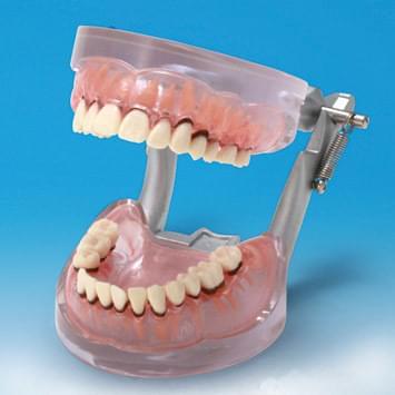 Model ochorenia parodontu PE-PER004