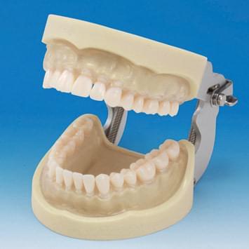 Model čeľuste s protetickou náhradou (32 zubov) - transparentné ďasno