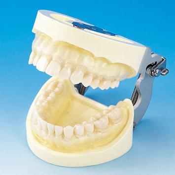 Model čeľuste s protetickou náhradou (28 zubov) - transparentné ďasno