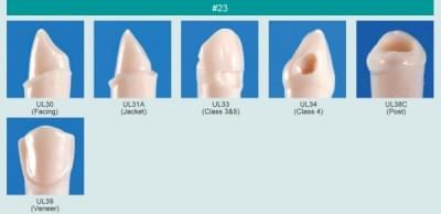 Model zubu s klinovým defektom (zub č. 23)