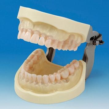 Model čeľustí k nácviku odstraňovania zubného kameňa