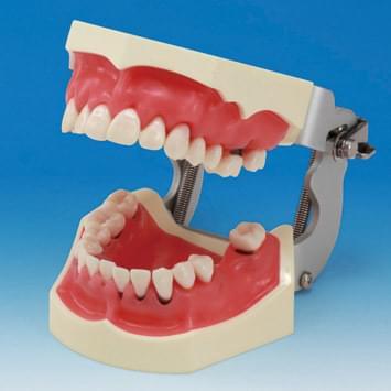 Model čeľuste - parodont PER2002-UL-SP