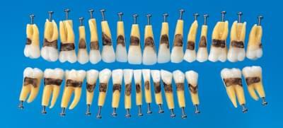 Anatomický model zubu s jednoduchým koreňom (sada 31 zubov)