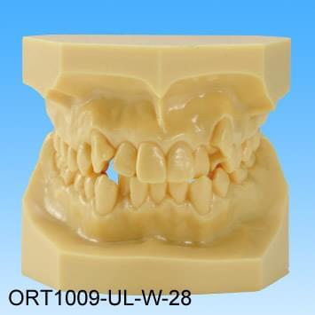 Živicový model chybného zhryzu (trieda I stiesnené zuby)