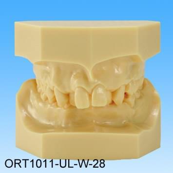 Živicový model chybného zhryzu (trieda II skupina I stiesnené zuby)