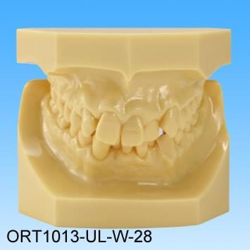 Živicový model chybného zhryzu (trieda II Skupina 2 stiesnené zuby)