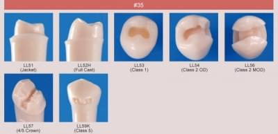 Model zubu pre prípravu piliera mostíka a čistenie zubu pred výplňou (zub č. 35)