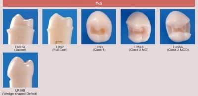 Model zubu pre prípravu piliera mostíka a čistenie zubu pred výplňou (zub č. 45)