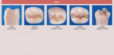 Model zubu pre prípravu piliera mostíka a čistenie zubu pred výplňou (zub č. 46)