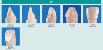Model zubu pre prípravu piliera mostíka a čistenie zubu pred výplňou (zub č. 21)