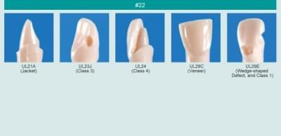 Model zubu pre prípravu piliera mostíka a čistenie zubu pred výplňou (zub č. 22)