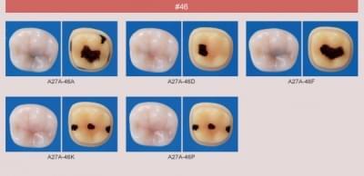 Model zubu so zubným kazom (zub č. 46)
