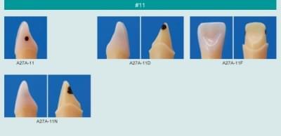 Model zubu so zubným kazom (zub č. 11)